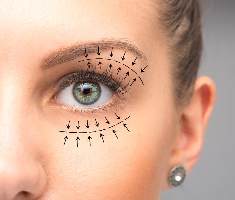 Woman with arrows around eyes representing the blepharoplasty procedure