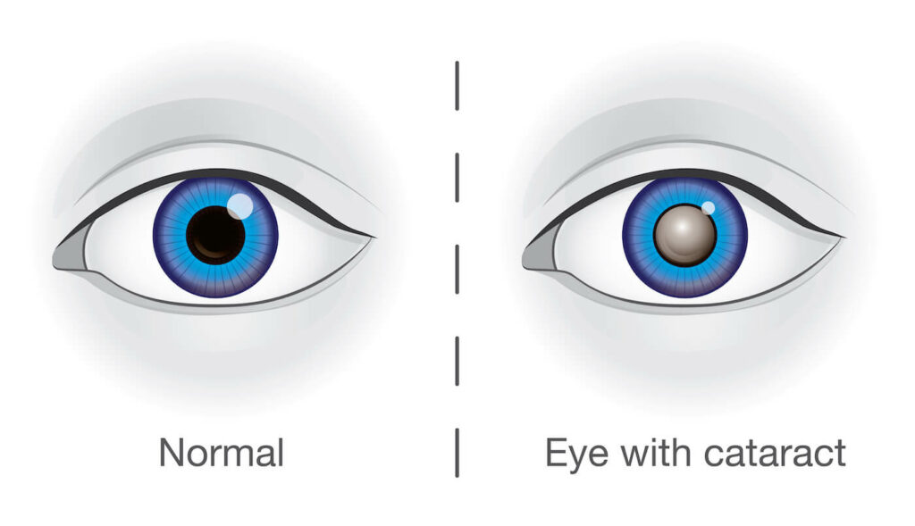 Diagram of what an eye looks like with a cataract