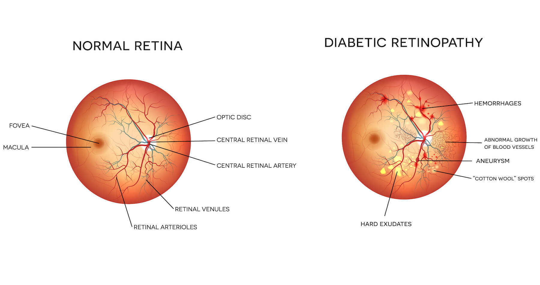 Diagram of diabetic retinopathy